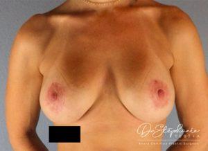 Before breast augmentation Dr. Stephanie Teotia Dallas TX