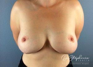 After breast augmentation Dr. Stephanie Teotia Dallas TX