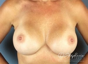 After breast implant removal/replacement Dr. Stephanie Teotia Dallas TX