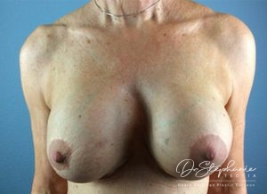 Before breast implant removal/replacement Dr. Stephanie Teotia Dallas TX