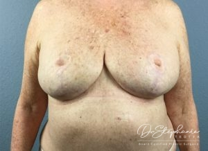 After breast reduction Dr. Stephanie Teotia Dallas TX