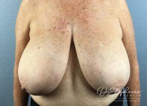 Before breast reduction Dr. Stephanie Teotia Dallas TX