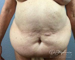Before tummy tuck Dr. Stephanie Teotia Dallas TX