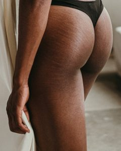 A woman's butt showing stretch marks